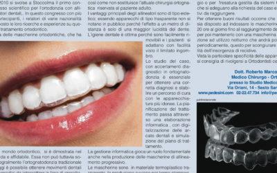Cosa sono gli allineatori ortodontici